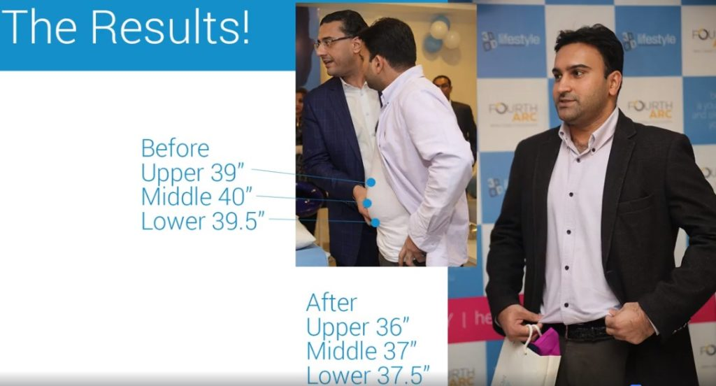 Random Patient Loses 3 Inches In 45 Minutes At 3D Lifestyle Launch